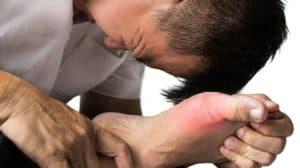 Gout Natural Remedies | Alternative Remedies