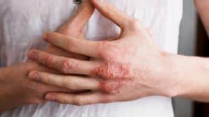 eczema-treatment-ft-image-ss