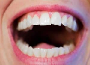 Toothaches | 8 Home Remedies Using Honey