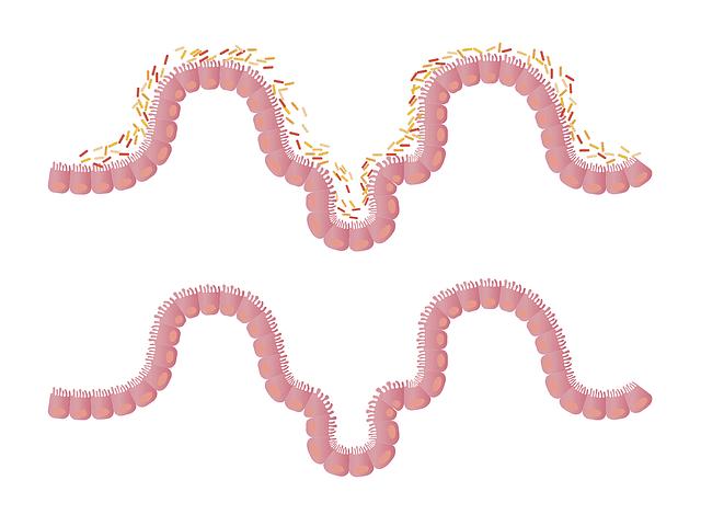kill intestinal worms
