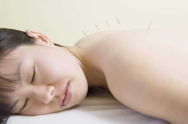 acupuncture may be a good remedy for menopause