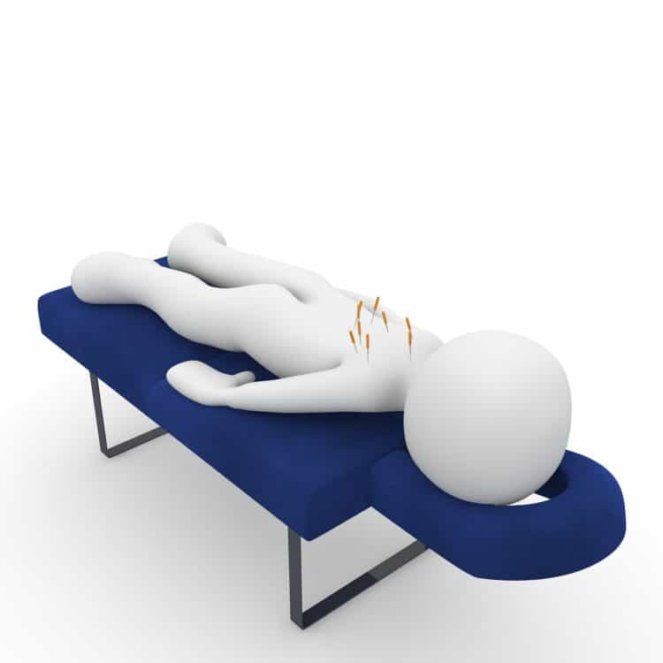 The Most Notable Benefits of Acupuncture
